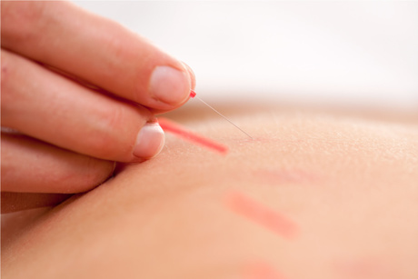 Consultation, Exam & Two Treatments From Jones Chiropractic & Acupuncture Center