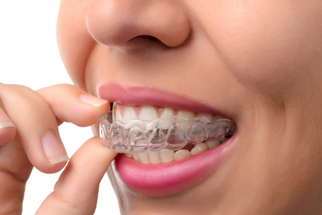Invisalign Braces From Smile at the World Orthodontics