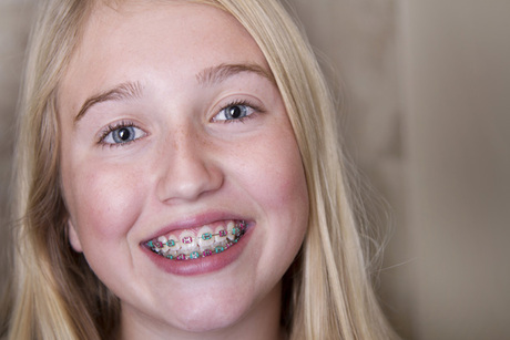 Traditional Braces With Smile at the World Orthodontics
